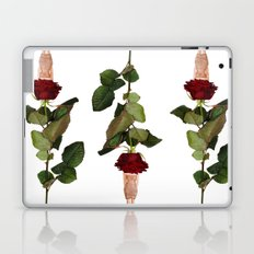 Blind Date Laptop & iPad Skin