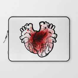 Two Hearts of Gore Laptop Sleeve