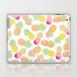 Tropical neon pink teal watercolor faux gold glitter pineapple Laptop & iPad Skin