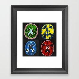4 Brain Scans Framed Art Print