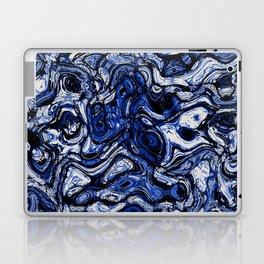 Im Confused Laptop & iPad Skin