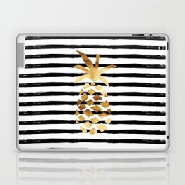Pineapple & Stripes Laptop & iPad Skin