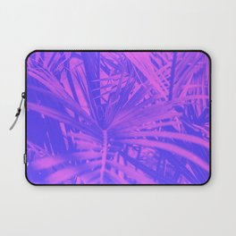 Later Gator Pink and Blue Tropical Neck Gaiter Laptop Sleeve