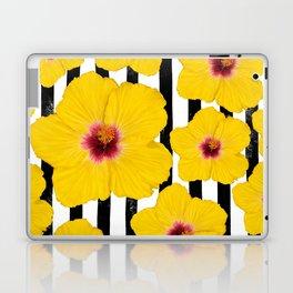 Summer Hibiscus Fun on Black & White Stripes Laptop & iPad Skin