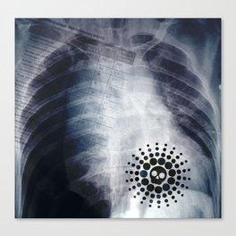 """""""Pneumothorax"""" Canvas Print"""