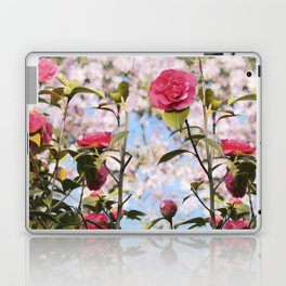 Up and coming Laptop & iPad Skin