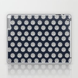 Glitter Pois Laptop & iPad Skin