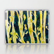 underwater seaweed Laptop & iPad Skin