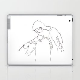 Wish of Embrace 1: Melting Kiss Laptop & iPad Skin