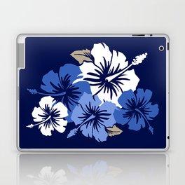 Epic Hibiscus Hawaiian Floral Aloha Shirt Print Laptop & iPad Skin