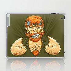 Who wears whom? Laptop & iPad Skin