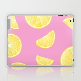 Pull up with a Lemon Laptop & iPad Skin