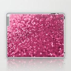 Candied Pink... Laptop & iPad Skin