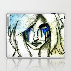 Loss Laptop & iPad Skin