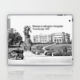 Moses-Ludington Hospital 1930 Laptop & iPad Skin