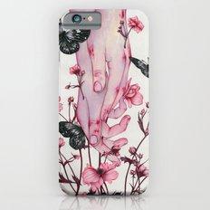 It Aches iPhone 6s Slim Case