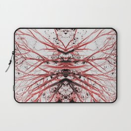 Bloodstream (Mirrored Trees) Laptop Sleeve