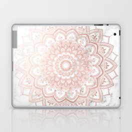 Pleasure Rose Gold Laptop & iPad Skin
