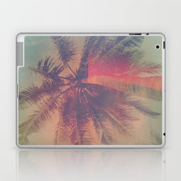 NEON SUMMER Laptop & iPad Skin