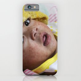 An infant in a hospital with measles (rubeola) iPhone Case