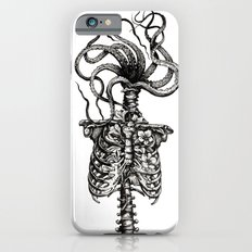 Curiosities - The Plaga Slim Case iPhone 6