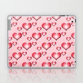 herzen collage 2 Laptop & iPad Skin