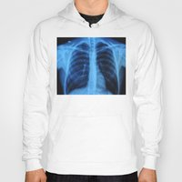 medical Hoodies featuring x ray medical radiography by tony tudor