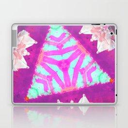 Immersive Madness Laptop & iPad Skin
