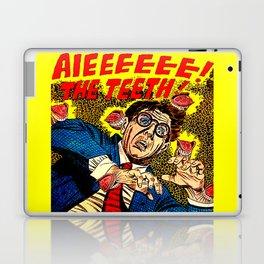 The Teeth! Laptop & iPad Skin