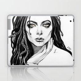 Lorde/Medusa Laptop & iPad Skin