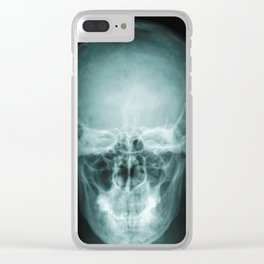 Human x-ray scan Clear iPhone Case