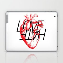 LOVE  –VS– HATE Laptop & iPad Skin