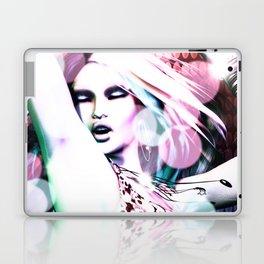 Rave Laptop & iPad Skin