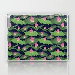 Pink Blush Night Laptop & iPad Skin