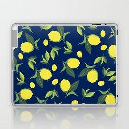 desire Laptop & iPad Skin