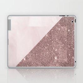 Pink Marble Glitter Laptop & iPad Skin