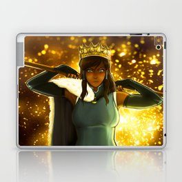 YOU CAN BE THE KING Laptop & iPad Skin