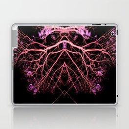 Neon Mirrored Trees 14 Laptop & iPad Skin