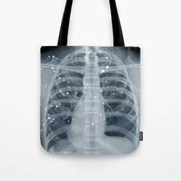 Situs Inversus Tote Bag