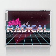 Totally Radical! Laptop & iPad Skin