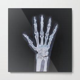 Handbone Metal Print
