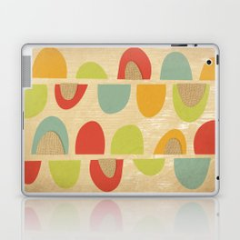 Egstra Laptop & iPad Skin