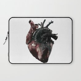Anatomical Heart - inspired by 5 Seconds of Summer's Jet Black Heart Laptop Sleeve