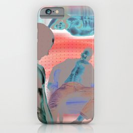 The Endless Daydream iPhone Case