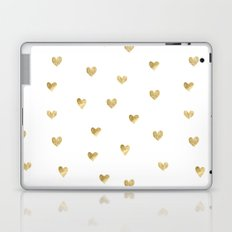 Gold Heart Laptop & iPad Skin