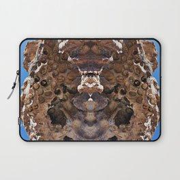 Pelvis Laptop Sleeve