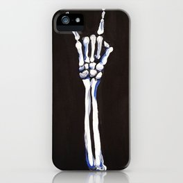 Rock On! iPhone Case