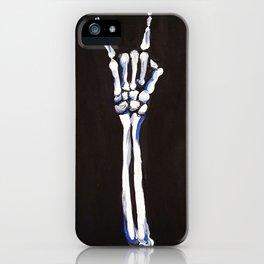 Rock On! iPhone Case
