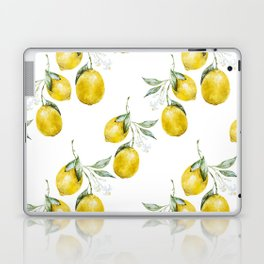 When Life Gives You Lemons Laptop & iPad Skin