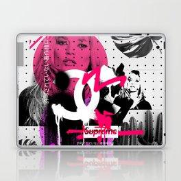 Kate Moss Logo Overdose Supreme Monstera Tropical Laptop & iPad Skin